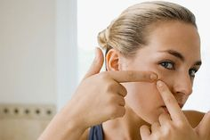 5 Natural treatment for Acne scar. Acne is a common skin problem that is faced by everyone at different stages of life. There are various factors responsible for acne, like hormonal changes, Health Guru, Health Trends, Health Fitness, Beauty Care, Beauty Hacks, Beauty Tips, Beauty Skin, Colon Irritable, Womens Health Magazine