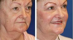 Reduce face and neck wrinkles with refreshing facial exercises. Look younger with face yoga workouts: Slimming a chubby face and toning your face and neck using facial aerobics exercises Do Facial Exercises Work, Face Yoga Exercises, Facial Yoga, Facial Massage, Sagging Face, Acupressure Therapy, Acupuncture, Face Tone, Natural Face Lift
