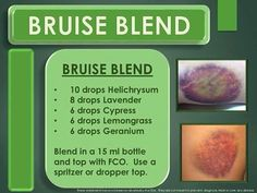 I have always bruised easy and love that I can apply oils when I know that I am getting a bruise. For the little bumps I use just a drop of Geranium or Helichrysium and apply 2 times per day and many times I never have any discoloration! www.onedoterracommunity.com https://www.facebook.com/#!/OneDoterraCommunity