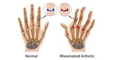 Can cracking your knuckles cause arthritis? ==>