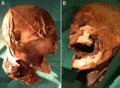 This mummified head, that had been floating through private collections for a few hundred years, was identified, in 2010, as the head of King Henry IV of France.  Hello Henry. Comment ça va?