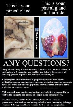pineal gland images