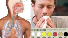 What The Color Of Your Mucus Says About Your Health
