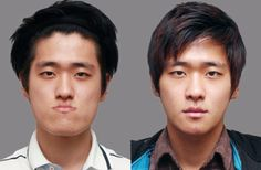 South Koreans Before and After Plastic Surgery | S.O.M.F