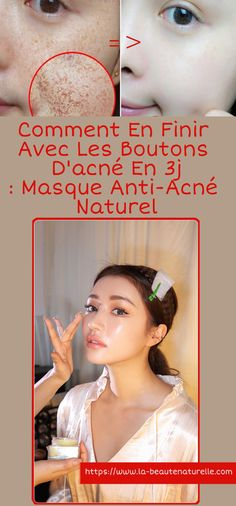 How to get rid of acne pimples in Natural anti-acne mask Handwriting Styles, Natural Hair Mask, Acne Mask, Acne And Pimples, Beauty Tips For Face, How To Get Rid Of Acne, Facial Care, Perfect Skin, Skin Tips