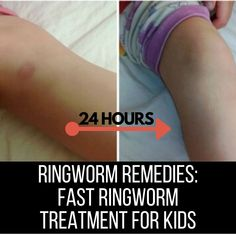 Ring Worm Treatment, Ring Worm Remedies, Wrestlers Diet, Home Remedies, Natural Remedies, Essential Oil Blends, Essential Oils, Get Rid Of Ringworm, Health