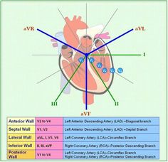 myocardial infarction locations - Google Search                                                                                                                                                                                 More