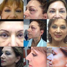 El rejuvenecimiento tiene varios pasos desde que tenemos heridas hasta la cicatrización http://www.mauriciolinares.com/cirugia-rejuvenecimiento/
