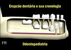 Erupcão dentária e sua cronologia | Odonto-TV