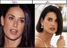 Plastic Surgery Pics Of Demi Moore  She Looks More Beautiful In Advance Of - http://www.aftersurgeryjob.com/plastic-surgery-moore-looks-beautiful-advance/