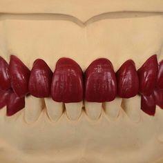 Perfect Dental Work by -… Dental Works, Dental Art, Dental Lab Technician, Dental Posters, Veneers Teeth, Dental Anatomy, Dental Laboratory, Dental Insurance, Dental Surgery