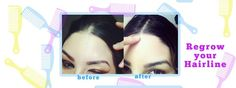 Natural Cure for Receding Hairline is easy as 2 weeks and thick regrowth of hair! Cures hairline, bald spots, chemo hair regrowth, over plucked eyebrows!