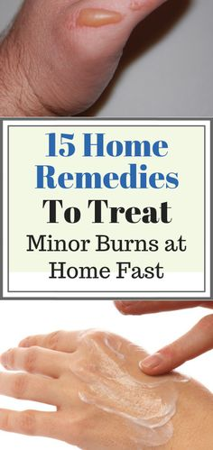 Effective Home Remedies to Treat Minor Burns at Home Fast 15 Simple Home Remedies to Treat Minor Burns at Home Fast. Natural Burn Remedies and Simple Home Remedies to Treat Minor Burns at Home Fast. Natural Burn Remedies and Ointments Cough Remedies, Herbal Remedies, Home Remedies For Burns, Natural Cold Remedies, Herbal Cure, Eating Organic, Organic Recipes
