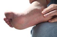 Heel pain is usually focused on the underside or the back of your heel. If your pain is on the underside of your heel, its likely cause is plantar fasciiti Nerve Damage Treatment, Peripheral Nerve, Peripheral Neuropathy, Plantar Fasciitis Remedies, Neuropathic Pain, Diabetic Neuropathy, Muscle Fatigue, Natural Remedies, Alternative Medicine