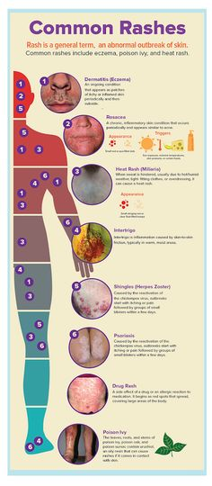Medical and Health Science: Common Rashes Health Resources, Health Tips, Health Care, Health Articles, Nursing Tips, Nursing Notes, Nursing Programs, Rn Programs, Ob Nursing