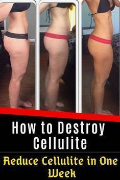 Can you get rid of cellulite once you have it? Is there an optimal way to reduce cellulite in one week or push even beyond that to find out how to get rid of cellulite in 2 weeks? Cellulite Wrap, Causes Of Cellulite, Cellulite Exercises, Cellulite Remedies, Reduce Cellulite, Anti Cellulite, Cellulite Workout, Tighten Stomach, Gewichtsverlust Motivation