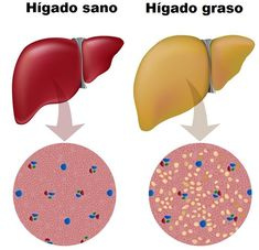Fatty liver is one the difficult stage of men and women. Here are the top 22 home remedies for fatty liver that cures liver issues and eliminating the excess fat. Heal Liver, Detox Your Liver, Detox Your Body, Liver Detox Symptoms, Home Remedies For Hemorrhoids, Snoring Remedies, Cure For Sleep Apnea, Zinc Deficiency, Metabolic Syndrome