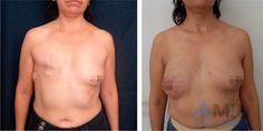 mastectomie et reconstruction mammaire