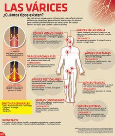 Las várices son venas que se inflaman por una mala circulación del torrente sanguíneo. Conoce las diferentes tipos que existen y cómo tratarlas. #Infographic