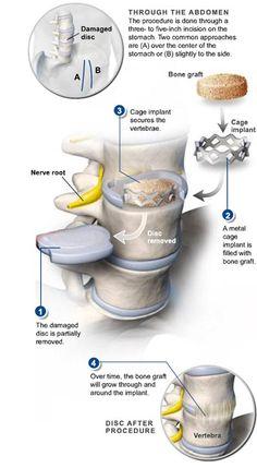 anterior interbody lumbar fusion | Anterior Lumbar Interbody Fusion (ALIF) – Back Surgery | Technical ...