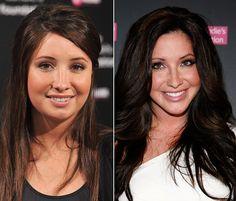 Bristol Palin admits plastic surgery. (admire the honesty)