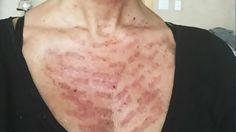 Sun Damaged Skin, Health Tips, Woman, Pictures, Photos, Photo Illustration, Resim, Women