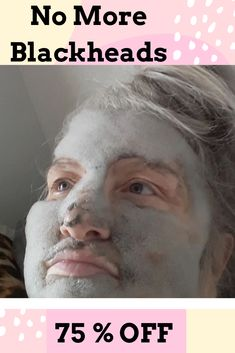 Hautprobleme Mitesser-Behandlung - # Behandlung # Mitesser - How To Select The Right Kind Of Fu Best Blackhead Mask, Best Blackhead Treatment, Blackhead Remover Homemade, Blackheads Removal Cream, Get Rid Of Blackheads, Carbonated Bubble Clay Mask, Pore Cleanser, Makeup Remover, Collagen
