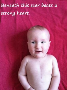 """We are very lucky.    When I was pregnant with my first son, Adam, my 18-week ultrasound showed what my doctor called a """"possible ventricular septal defect"""" and after many more ultrasounds my obstetrician said when my son was born they would look at his heart before we were released.    They did not look at his heart. They listened to it and said it was fine. In 24 hours we were released.    In the early weeks of Adam's life he was always sleepy/sleeping. I set the timer on my stove to wake"""
