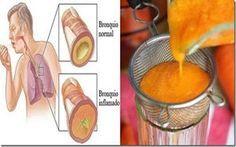 Remedio casero para tratar de forma efectiva asma, resfriados y problemas respiratorios de diversa índole.