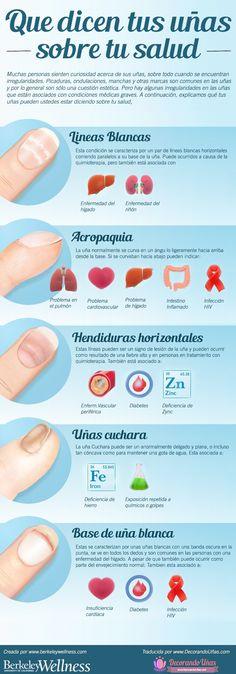 Lo que dicen tus uñas respecto a tu salud - Infografía…
