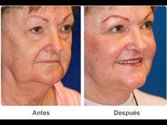 Remedios caseros para las ARRUGAS ALREDEDOR DE LA BOCA Tratamientos faciales naturales - YouTube