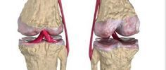 Os melhores remédios naturais para a regeneração da cartilagem do quadril e dos joelhos - http://comosefaz.eu/os-melhores-remedios-naturais-para-a-regeneracao-da-cartilagem-do-quadril-e-dos-joelhos/