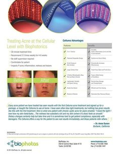 Celluma is great for Anti-Aging & Acne  #ledfacial #acne #antiaging