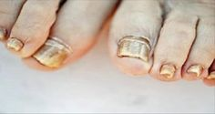Even-The-Doctors-Are-Amazed-Soak-Your-Feet-in-One-of-These-Mixtures-And-Get-Rid-Of-Toe-Nail-Fungus-–-Naturally