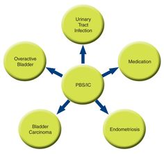 Differential Diagnosis | Uracyst | About PBS/IC | Diagnosis | Differential diagnosis