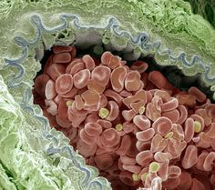 Coloured scanning electron micrograph (SEM) of an elastic artery cross-section.