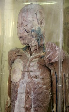 Wet Specimen of a Dissected Body by Curious Expeditions, via Flickr
