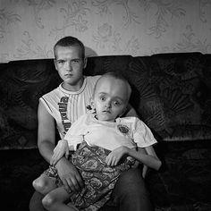 Chernobyl Disaster Gross Efects | Chernobyl Mutations