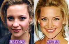 Did Kate Hudson get a nose job? It is rumored that the first Kate Hudson nose job took place in 1998 and several jobs after that. Nose Surgery, Dental Surgery, Garry Cooper, Actress Without Makeup, Plastic Surgery Photos, Celebrities Before And After, Celebrity Plastic Surgery, Operation, Lip Fillers