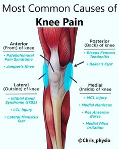 arthritis knee pain remedies, kinds of remedies and ways to reduce knee discomfort or treatment towards knee arthritis Knee Arthritis, Rheumatoid Arthritis, Knee Pain Exercises, Knee Pain Relief, Yoga Anatomy, Medical Anatomy, Muscle Anatomy, Medical Information, Medical Help