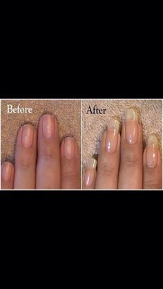 How To Grow Nails Fast #Beauty #Trusper #Tip