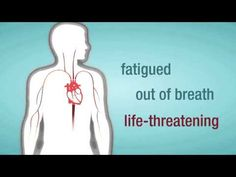 Valve Regurgitation: When a Heart Valve Leaks