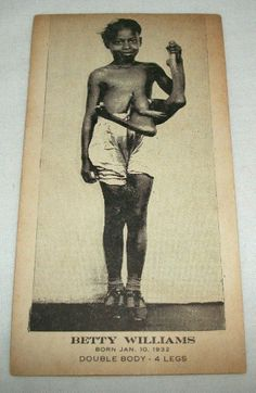 Vintage Betty Lou Williams 4 Legs Circus Freak Sideshow Picture Photo Card Creepy Old Photos, Human Oddities, Vintage Medical, Creatures Of The Night, Vintage Circus, No Photoshop, African History, Sideshow, History Facts