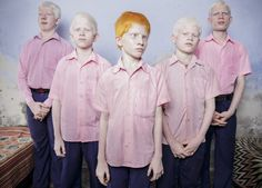 2014 | Blind Indian Albino Boys by Brent Stirton.
