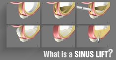 What is a Sinus Lift? A sinus lift is performed if there is a loss of bone in your upper jaw. This treatment is performed by our surgeon, adding bone to your upper jaw where the molars and premolars sit in your mouth.