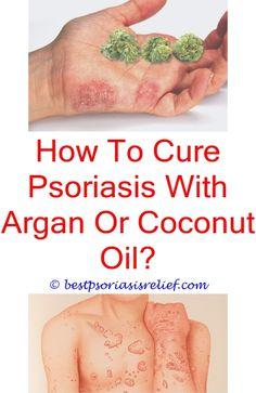 mat mot psoriasis