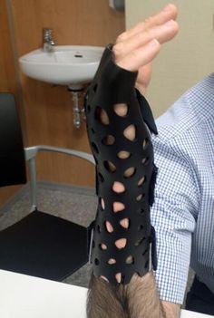 inmovilizaciones con impresora 3D - Buscar con Google