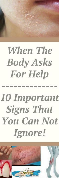 When The Body Asks For Help – 10 Important Signs That You Can Not Ignore! The human body is regarded as perfect mechanism since it keeps in check million of processes which happen at the same time. Health And Beauty, Health And Wellness, Health Tips, Health Fitness, Healthy Beauty, Health Care, Natural Health Remedies, Natural Cures, Natural Healing
