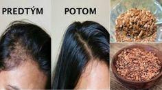 Hair Remedies Grandma's Secret Flax Seed That Changed My Hair Growth Completely Hair Remedies For Growth, Hair Growth, Flaxseed Gel, Hair Pack, Salud Natural, Sr1, Natural Hair Styles, Long Hair Styles, Hair Vitamins
