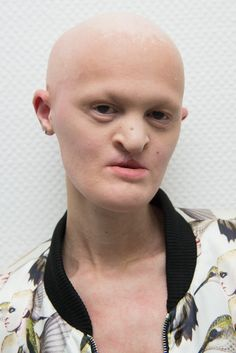 Meet Super Model with no teeth and bald head reveals how embracing her unique appearance helped to boost her fashion career(photos) Beauty Myth, Dark Beauty, My Beauty, Melanie Gaydos, Rare Genetic Disorders, Unique Faces, Making Waves, Dental Implants, Face And Body
